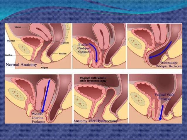 surgical-anatomy-pelvic-organ-prolapse-26-638.jpg